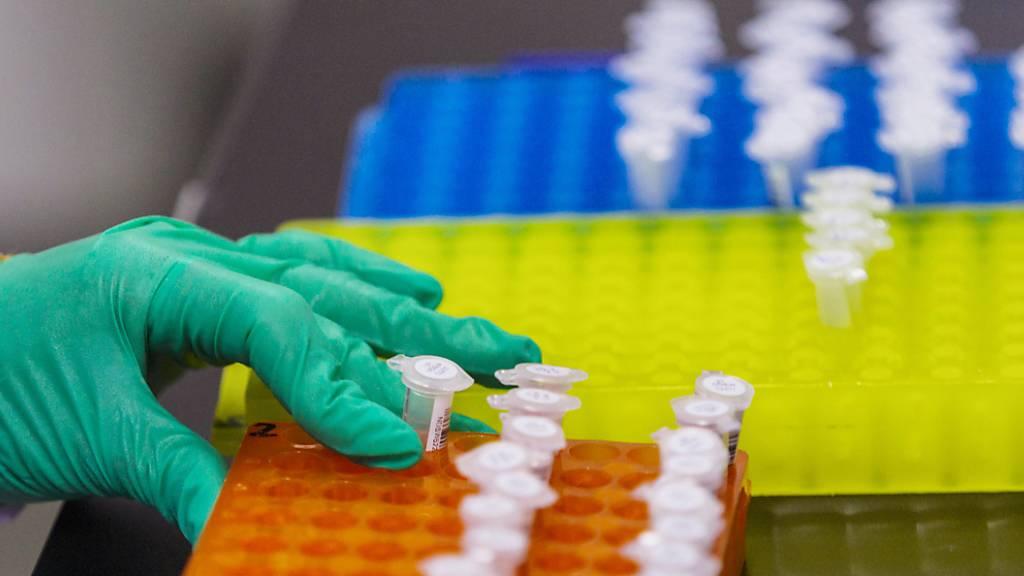 Bei der Aufklärung von schweren Verbrechen sollen künftig auch Merkmale zum äusseren Erscheinungsbild des mutmasslichen Täters aus DNA-Profilen ausgewertet werden dürfen. Kritiker sehen den Schutz der Grundrechte in Gefahr. (Symbolbild)