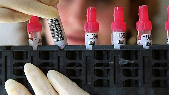 Bluttest in einem medizinischen Labor (Archiv)