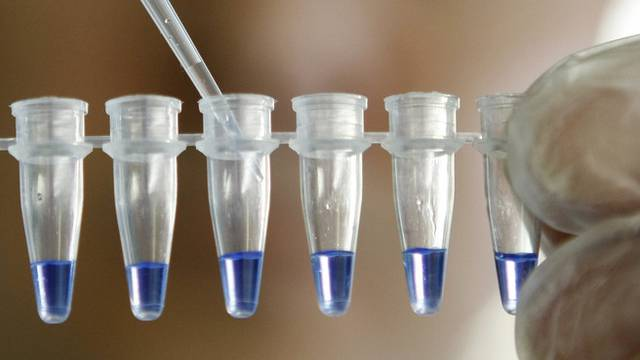 Der Marcel Benoist Preis geht an einen Zellbiologen (Symbolbild)
