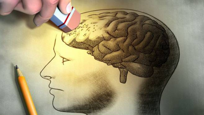 95 Prozent der Dementen sind von Alzheimer betroffen, bei dem Nervenzellen in bestimmten Abschnitten des Gehirns absterben.
