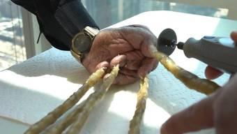 In einer medizinischen Einrichtung hat sich Shridhar Chillal seine Zwei-Meter-Fingernägel abschneiden lassen.