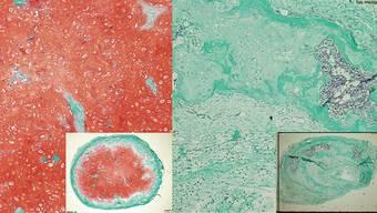 Aus Stammzellen aus dem Knochenmark von Erwachsenen lassen sich stabile Gelenkknorpel herstellen.