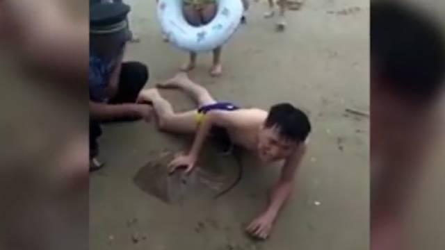 Stachelrochen sticht Mann in Penis