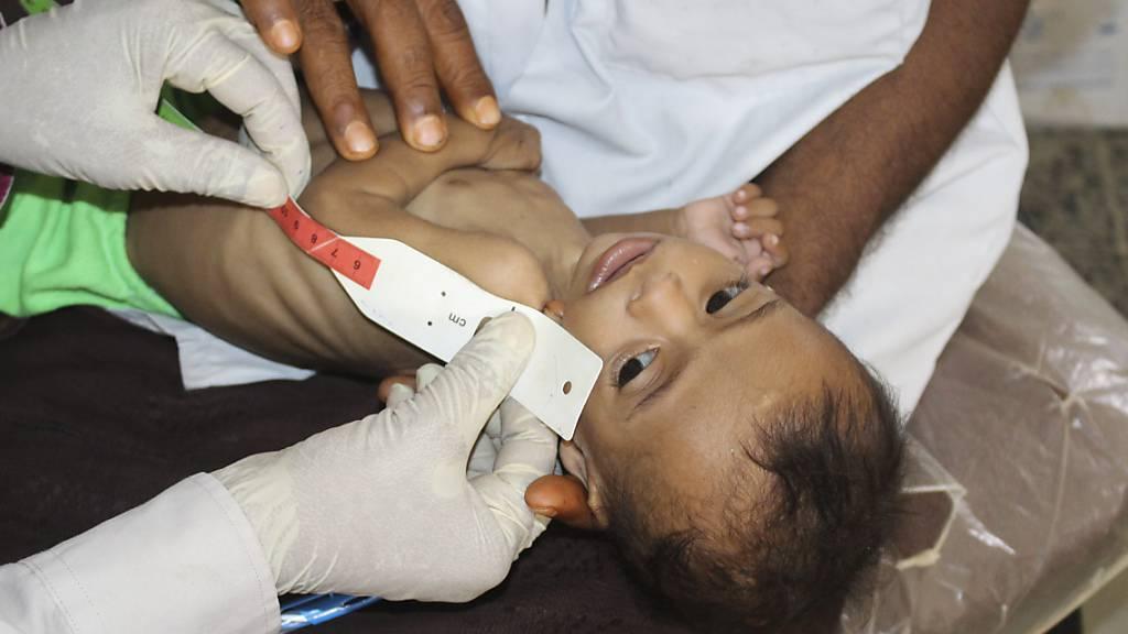 UN-Bericht: Unterernährung ist gefährlich auf dem Vormarsch