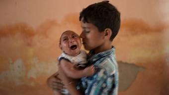 Es gibt einen Zusammenhang zwischen dem Zika-Virus und Babys mit Schädelfehlbildungen.