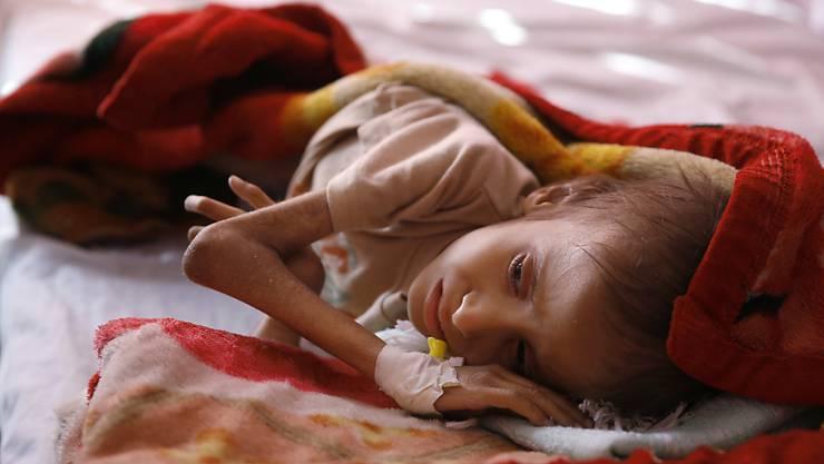 Unterernährtes Kind in einer Pflegestation in Sanaa (Archiv)