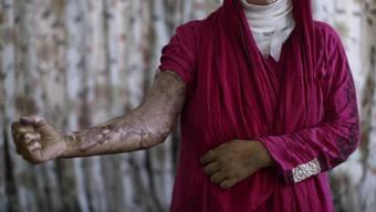 Diese Pakistanerin wurde von ihrem Mann in Brand gesetzt