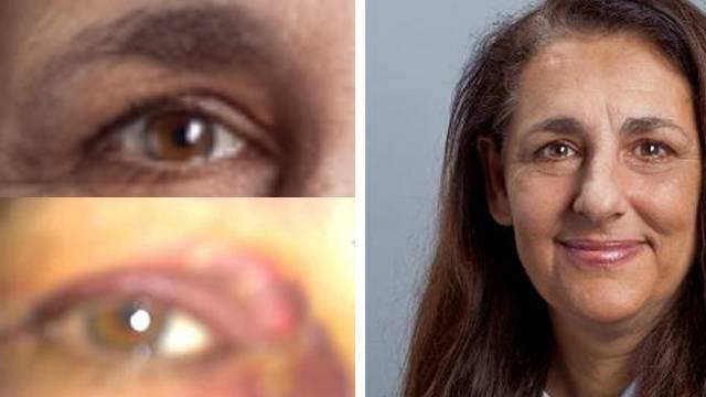 Jaquelin Badran vor und nach dem Unfall.