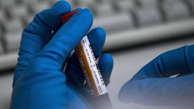 Die Analysen des Moskauer Antidopinglabors weisen viel mehr positive Fälle aus als in der offiziellen Statistik erscheinen.