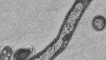 Der Tuberkulose-Erreger Mycobacterium tuberculosis (Archiv)