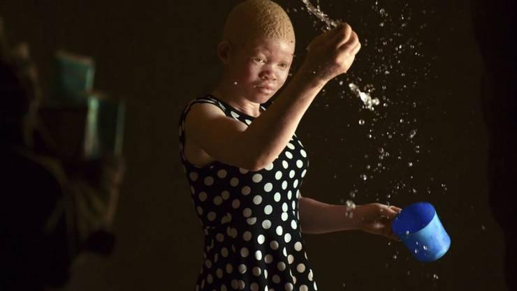 Catherine Amidu befeuchtet ihren sandigen Hüttenboden in Machinga, Malawi. Als Albina muss sie um ihr Leben fürchten, da Körperteile von Menschen wie ihr als glückbringend gehandelt werden. (Archivbild Februar 2020)