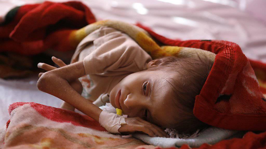 150'000 unterernährte Kinder könnten in den nächsten Monate sterben. (Archivbild)