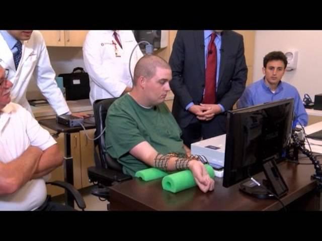 Gelähmter Mann bewegt seine Hand dank eines Chips im Kopf.