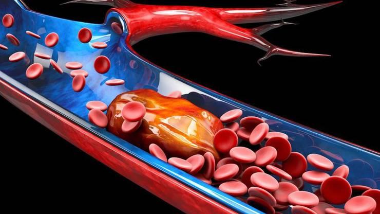 Darstellung eines Blutgerinnsels.