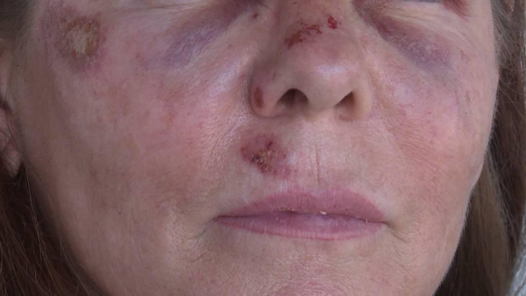 Frau von mehreren Männern in Bern spitalreif geprügelt