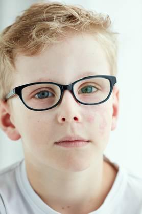 Loris (6) war schon 13 Mal im Spital, um sein Feuermal lasern zu lassen. Denn manchmal nervt es, nicht ein unauffälliger Junge sein zu können.