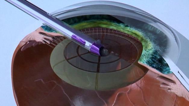 Schnitttechnik mit Laser bei Grauem Star