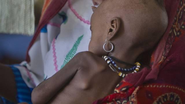 Die UNO warnt vor einer Hungersnot in Westafrika (Archiv)