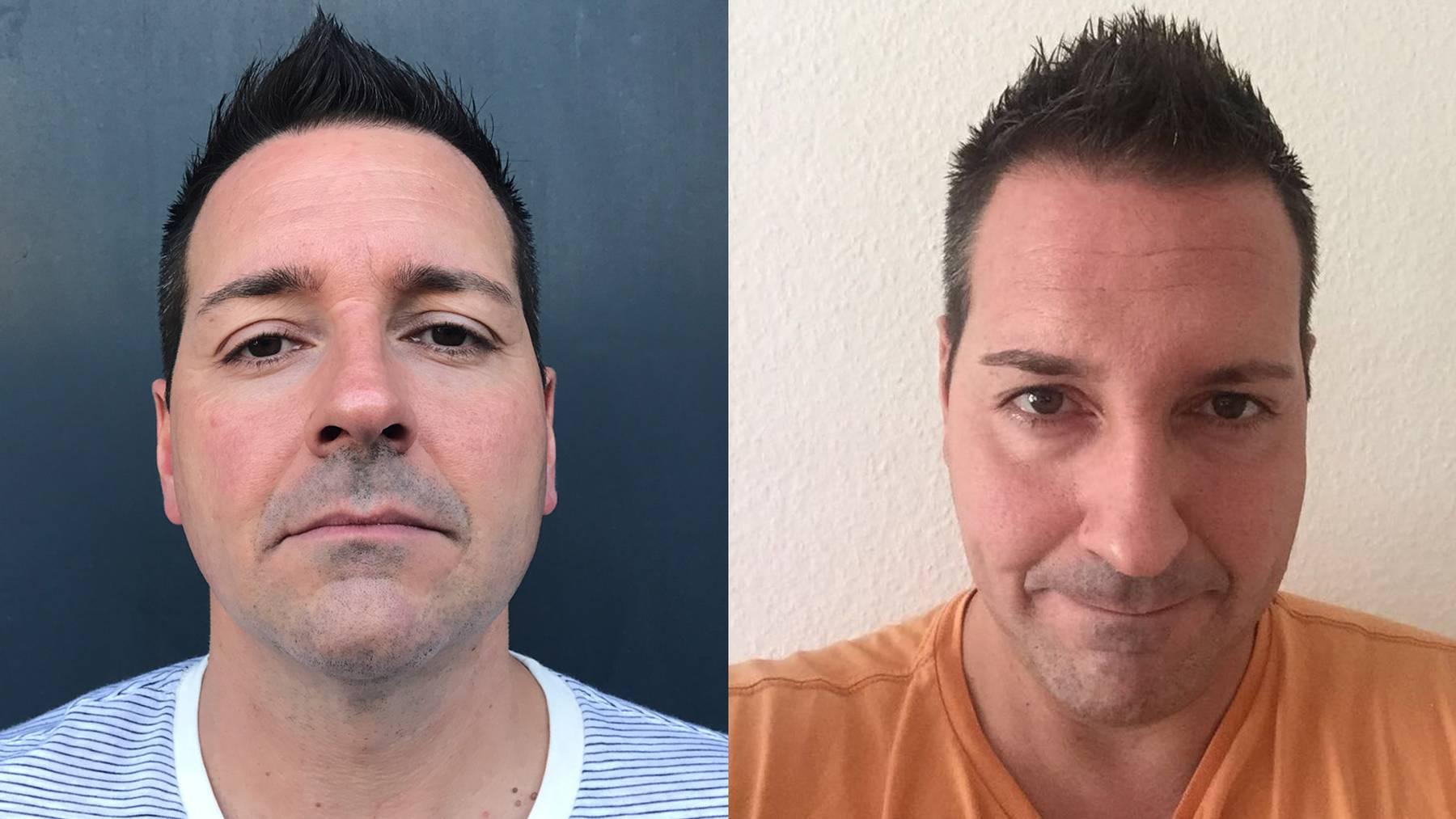 Studer Botox Vorher Nachher Beauty-Day