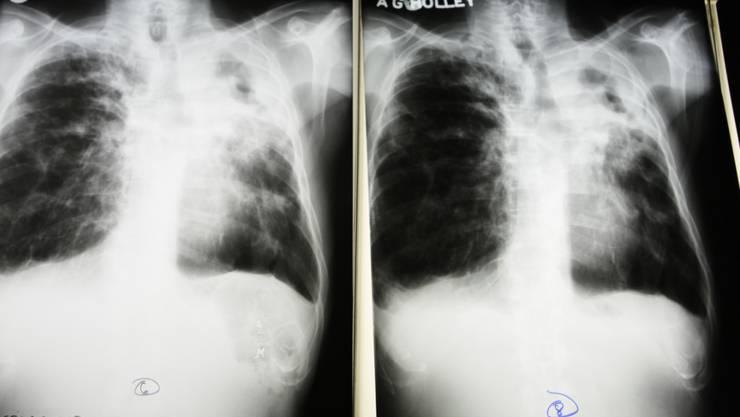 Röntgenaufnahme eines Tuberkulosepatienten: Bei mehreren Flüchtlingen aus Afrika hat das Institut für Medizinische Mikrobiologie der Universität Zürich im Jahr 2016 einen multiresistenten Tuberkulosekeim entdeckt. (Symbolbild)