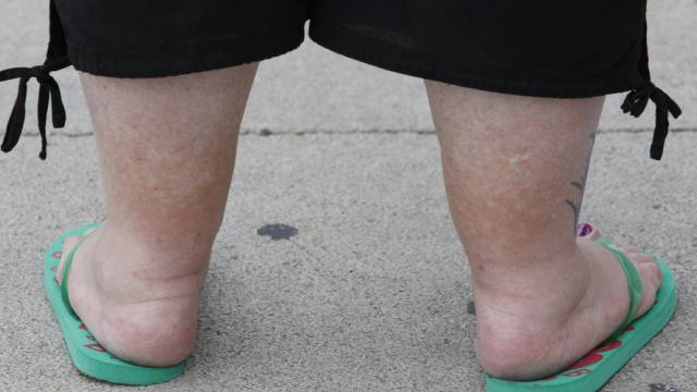 Eine übergewichtige Frau (Archiv)