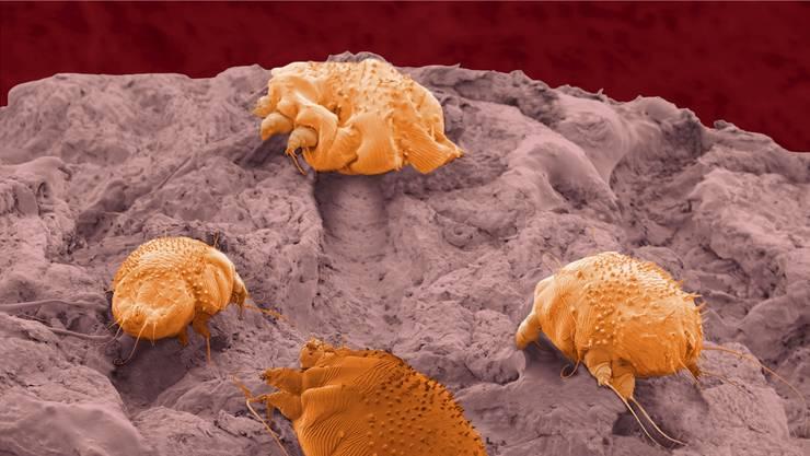 Ein Winzling ist für das Jucken verantwortlich: Krätzmilben bohren sich durch die Haut.