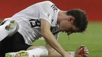 Blut tropft aus der Nase - Der Deutsche Sebastian Rudy brach sich beim 2:1 gegen Schweden die Nase