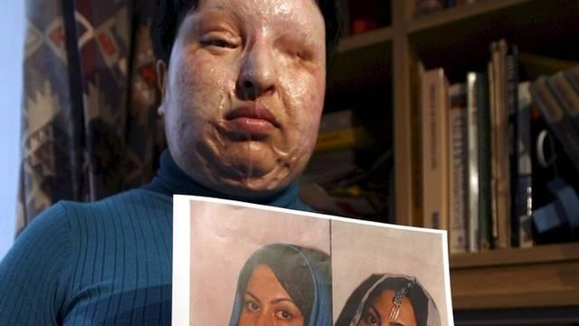 Die entstellte Ameneh Bahrami mit Bildern vor der Säureattacke (Archiv)