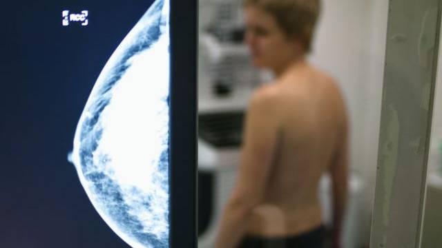 Ab nächstem Jahr erhalten Frauen zwischen 50 und 70 Jahren regelmässig das Aufgebot zum Mammografie-Screening.