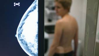 Brustkrebsscreenings sollen im Kanton häufiger durchgeführt werden.