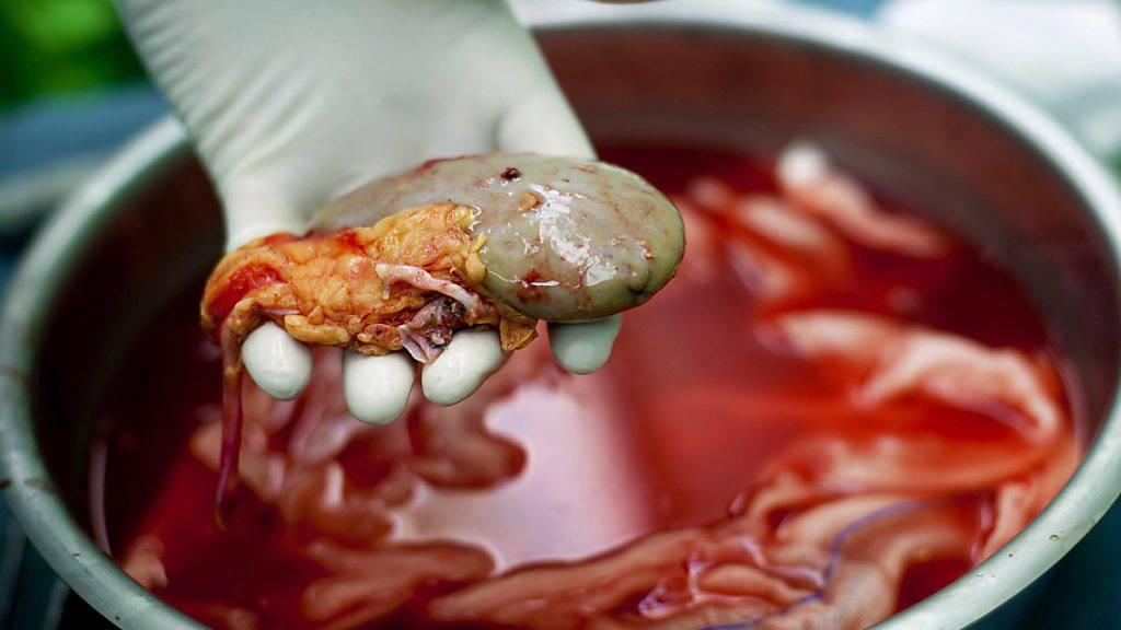 Illegaler Nieren-Händlerring in Bulgarien aufgeflogen