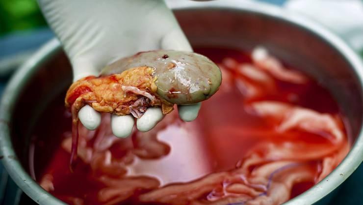 In Bulgarien ist ein illegaler Nieren-Händlerring aufgeflogen, der arme Menschen gegen Geld zur Organspende brachte. (Symbolbild)