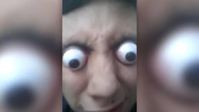 Bizarres Talent: Diesem Jungen quellen die Augen 10 Millimeter aus dem Kopf!