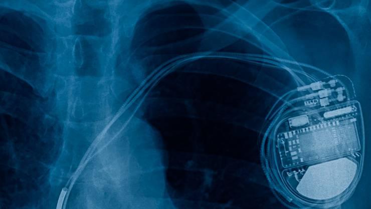 Röntgenbild eines Herzschrittmachers.