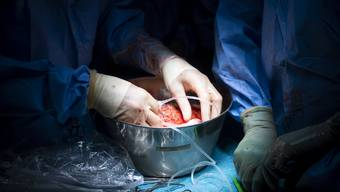 Am Universitätsspital Lausanne nehmen Ärzte eine Transplantation einer Niere vor. (Archivbild)