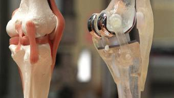 Die Nasen-Knorpelzellen könnten für die Reparatur von Knorpel in den Kniegelenken nach Sportverletzungen nützlich sein. (Symbolbild)