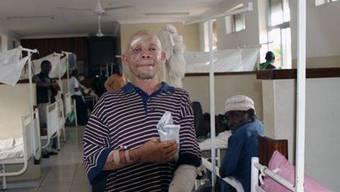 Immer wieder werden Albinos in Tansania verstümmelt: Dieser Junge wurde im Jahr 2010 angegriffen (Archiv)