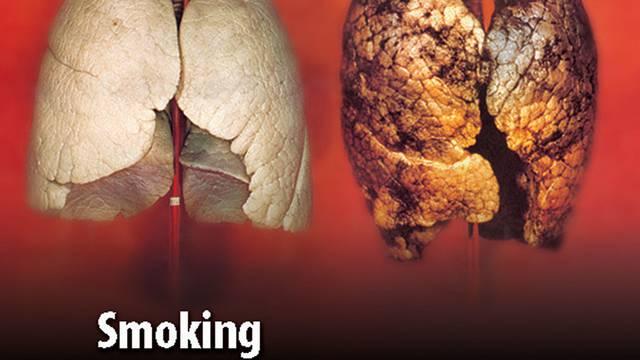 Britischer Warnhinweis auf Zigarettenpackungen: Der Lungenkrebs bei Frauen nimmt zu (Symbolbild)