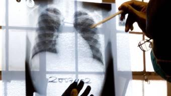 Eine Röntgenaufnahme einer Lunge wird auf Tuberkulose untersucht (Archiv)