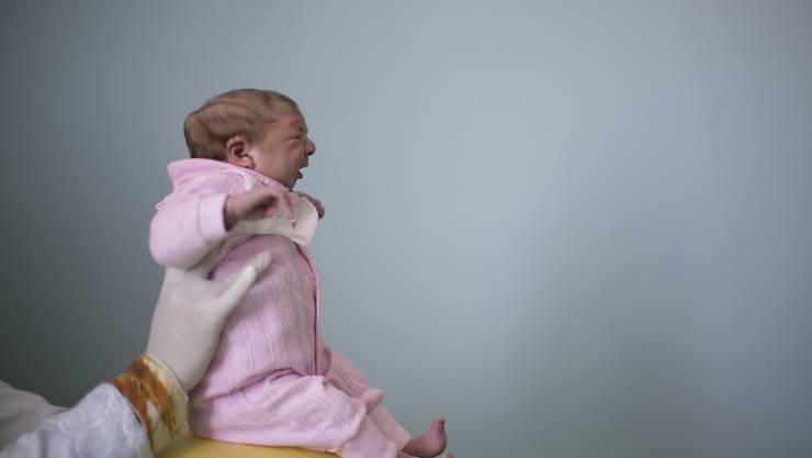 Das Zika-Virus kann bei Neugeborenen eine seltene Schädelfehlbildung namens Mikrozephalie auslösen. (Symbolbild)