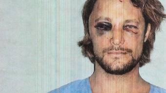 Das Polizeifoto zeigt, wie brutal Gabriel Aubry, der Kindsvater von Halle Berrys Tochter, verprügelt wurde.