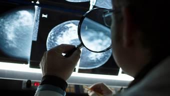 Mit der Mammografie kann Brustkrebs frühzeitig erkannt werden.