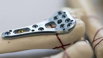 Laut internationalen Recherchen soll die Zahl der Problemfälle mit Implantaten weltweit stark zugenommen haben. (Symbolbild)