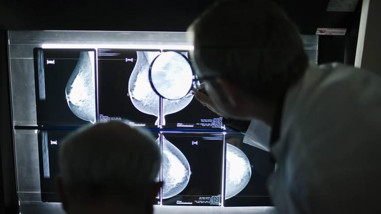 Bei einem kantonalen Früherkennungsprogramm werten jeweils zwei Radiologen die Bilder aus.