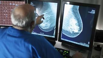 Ein Mediziner betrachtet eine Brust (Symbolbild)
