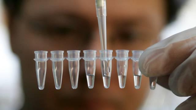 DNA-Tests, ein grosses, neues Geschäftsfeld (Symbolbild)