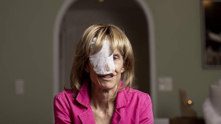 Susi Schildknecht zeigt trotz entstelltem Gesicht Mut.