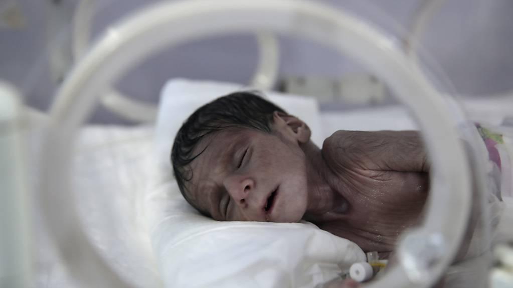 Ein unterernährtes Neugeborenes liegt in einem Inkubator im internationalen Krankenhaus UniMax in Sanaa.