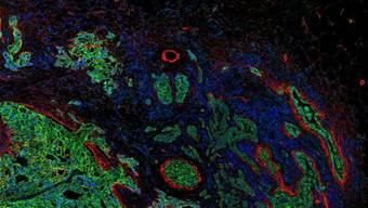 """Aufnahme eines Gewebeschnitts mit verschiedenen Biomarkern, die eine Analyse der """"Zellen-Landschaft"""" eines Tumors und des umliegenden Gewebes ermöglichen."""