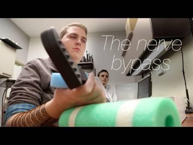 Nerven-Bypass mittels Chip im Hirn